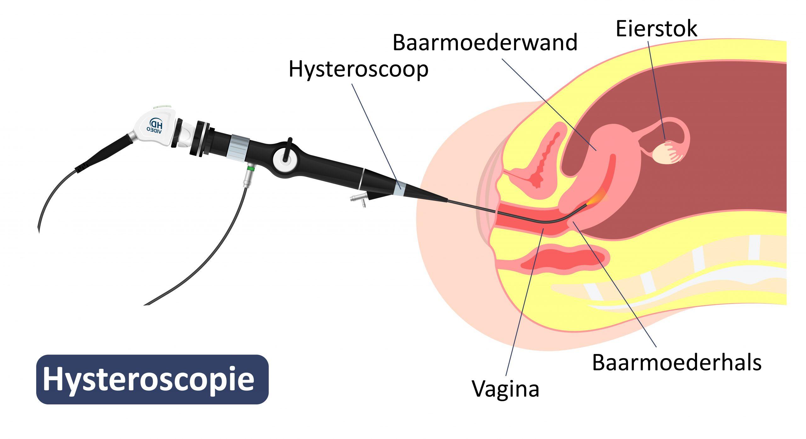 Hysteroscopie.jpg
