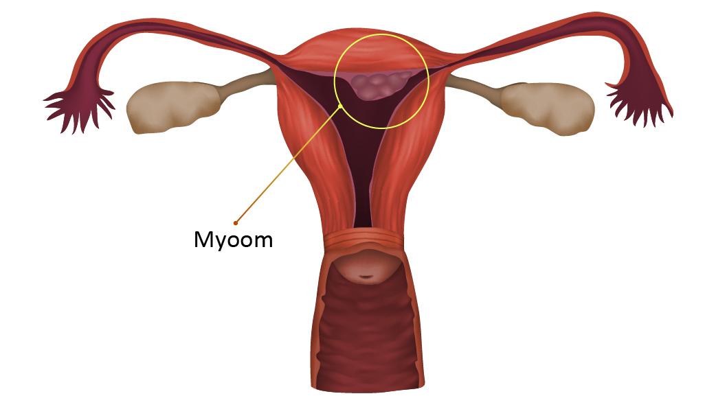 Myoom01.jpg