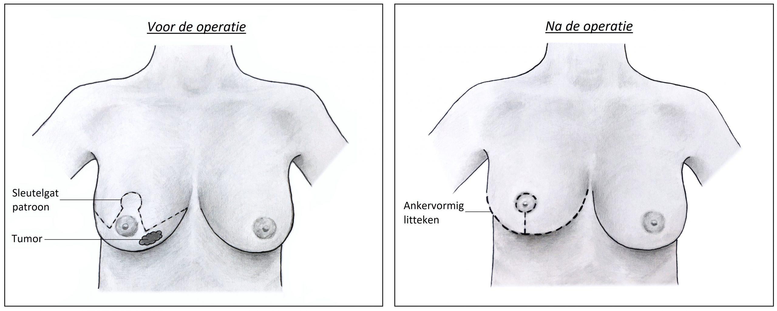 Oncoplastische reductie - voor en na.jpg