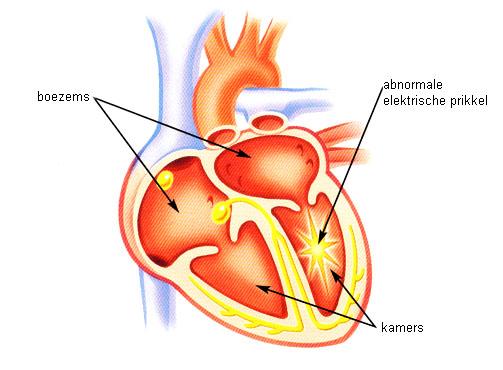 kamertachycardie.jpg