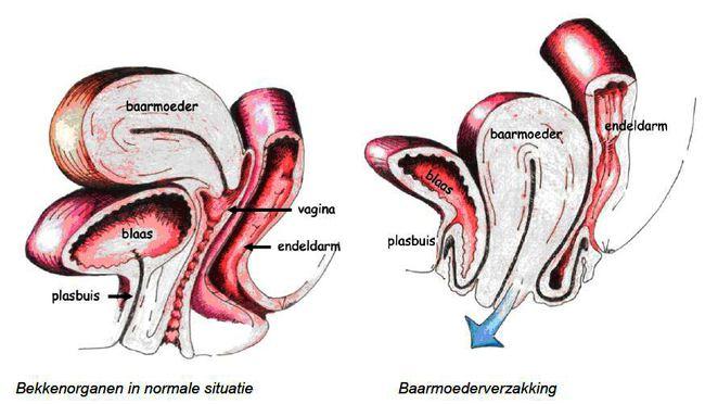 Afbeeldingen bekkenorganen en baarmoederverzakking.JPG