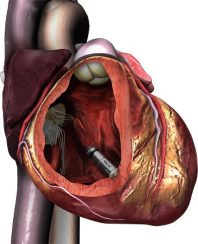 CAR-045 Micra pacemaker.jpg