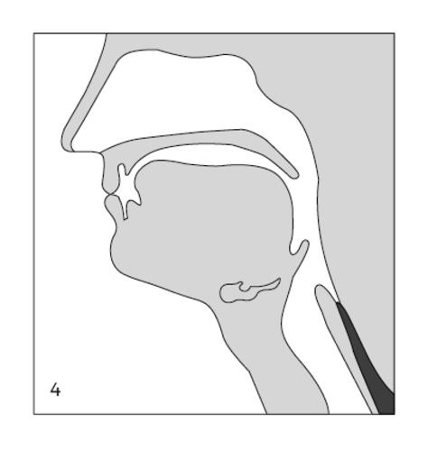 LOG-005 Kauw- en slikproblemen afbeelding 4.jpg