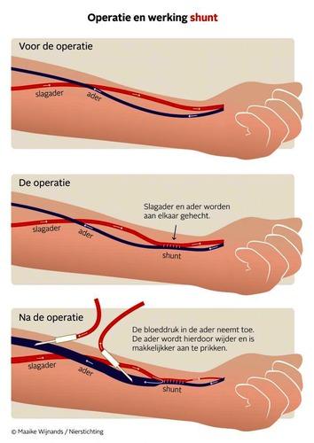 Nieren operatie shunt.png