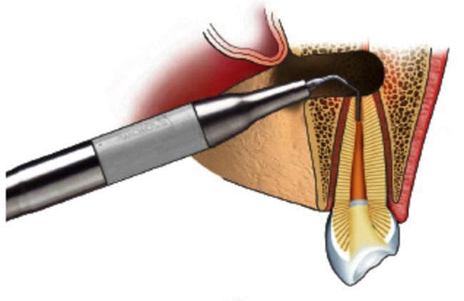 behandeling van een wortelpuntontsteking 4