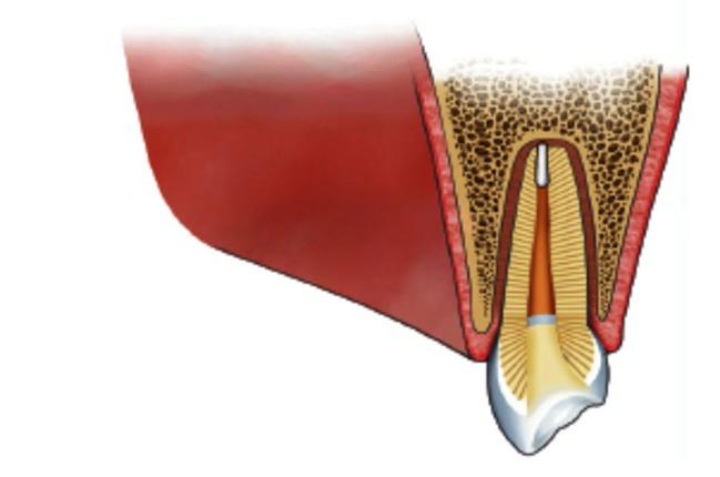 behandeling van een wortelpuntontsteking 6