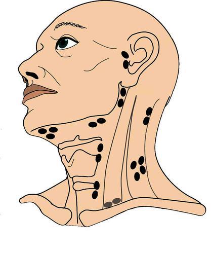lymfklier in de hals solitair vergroot_kleur (2).jpg