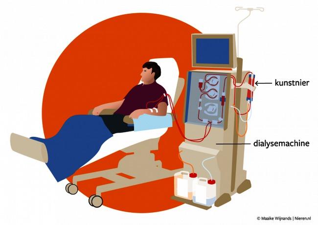 nieren hemodialyse 2.png